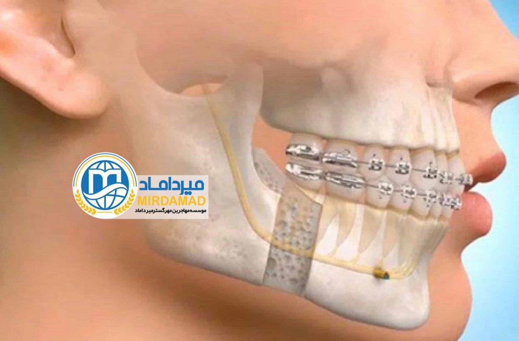 تحصیل تخصص دندانپزشکی در ترکیه